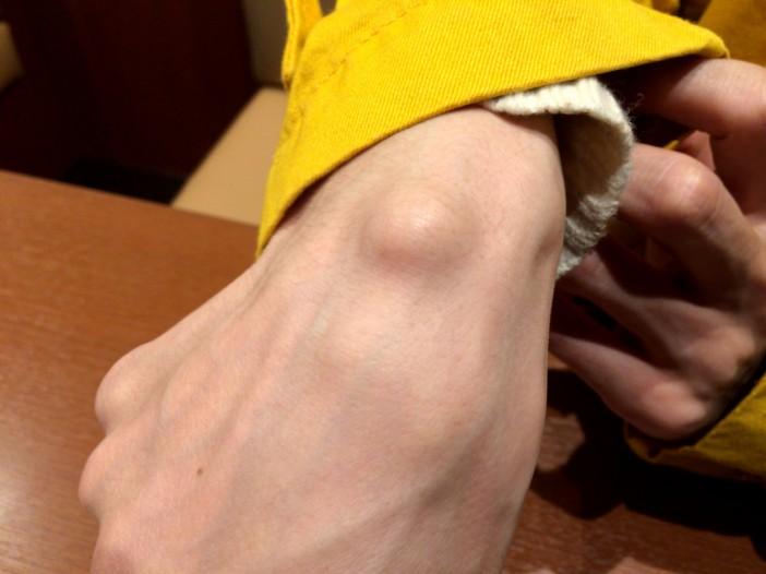 ガングリオンという手首のできもの