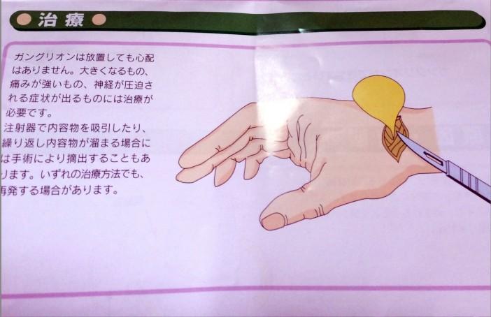 ガングリオンの治療方法